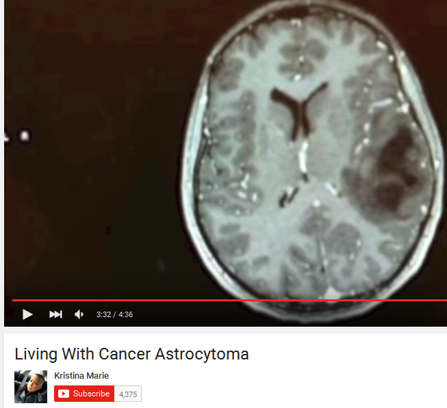 Cannabis Shrinks Aggressive Brain Tumors Mri Evidence Of